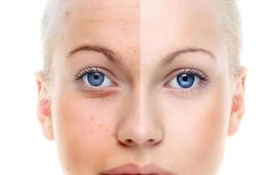 Facial Plastic Surgeon in Houston Shows Off Results