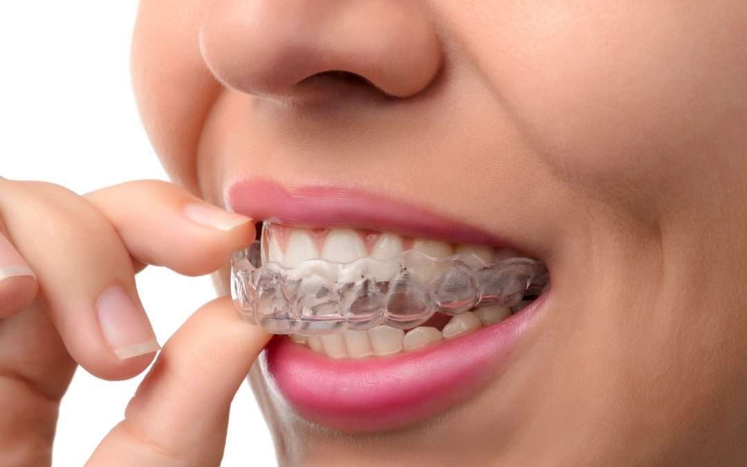 Dental Video Marketing for Orthodontists
