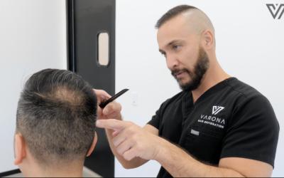 Hair Replacement Doctor Explains Procedure